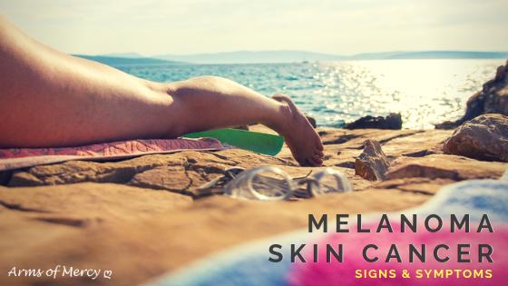 melanoma skin cancer - arms of mercy npc