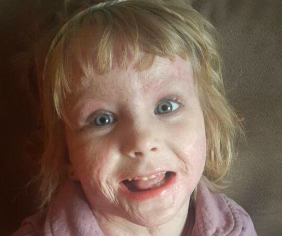 Fundraising for Isabella Pippie Kruger – Burn Victim